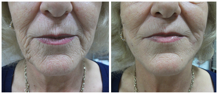 thread lift before after pictures Dr. Denning