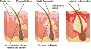 how acne forms