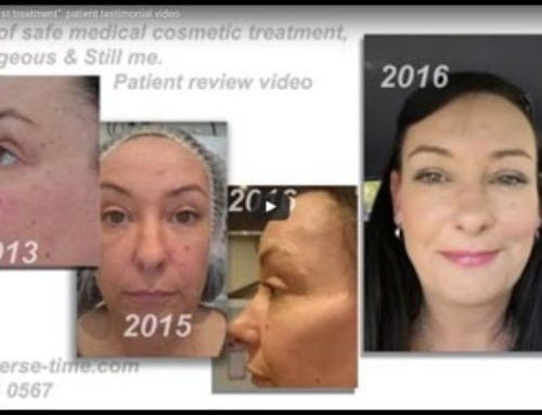 Ageing well: 7 years since my first treatment