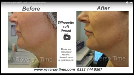 Silhouette Soft thread lift result - Patient video testimonial
