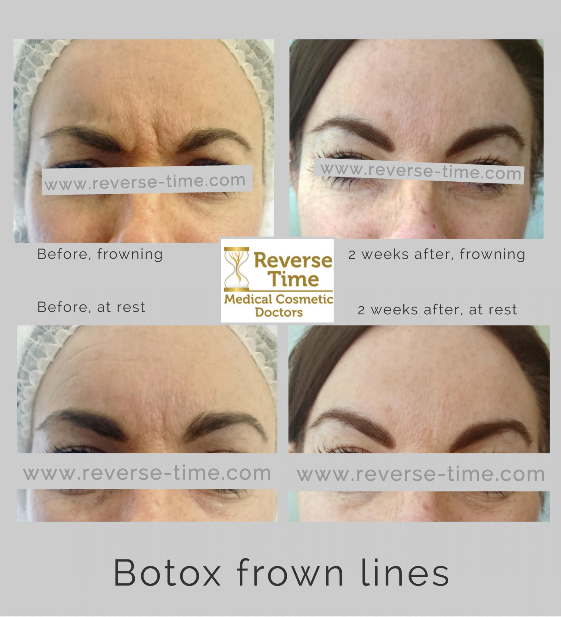 botox frown lines before after photos