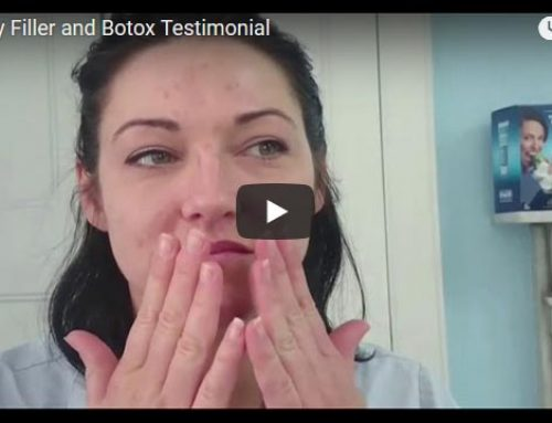 Fillers and Botox patient experience ST