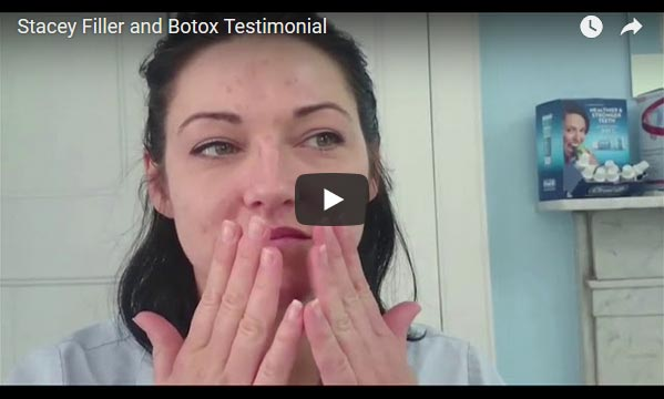 Combination treatments Radiesse dermal filler and botulinum toxin (Botox) patient testimonial