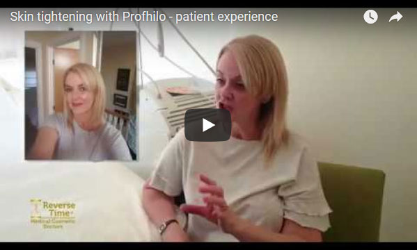 Skin tightening with Profhilo – patient experience