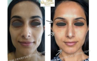 Multipoint facial lifting and harmonization