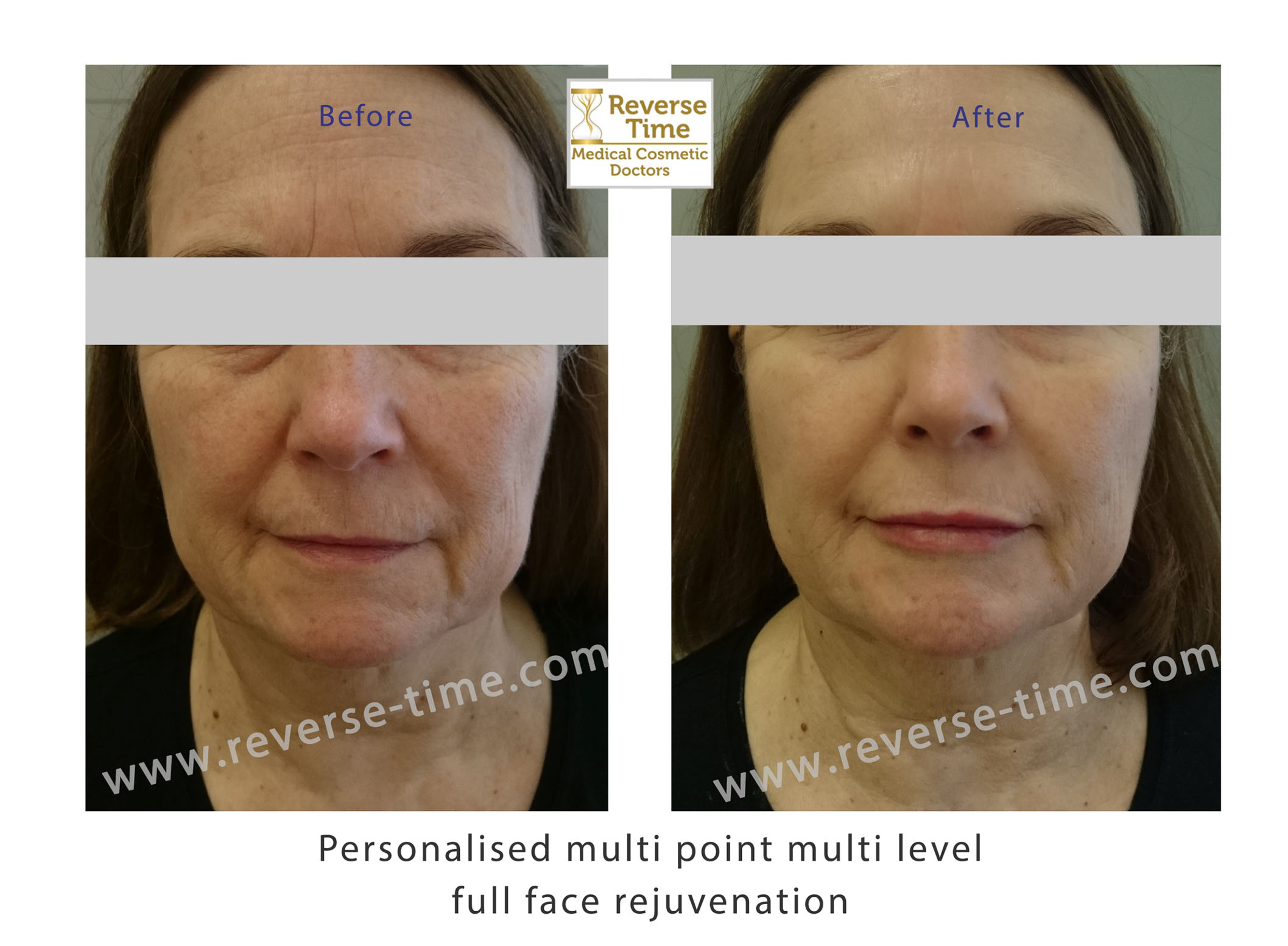 Multipoint Facial harmonization