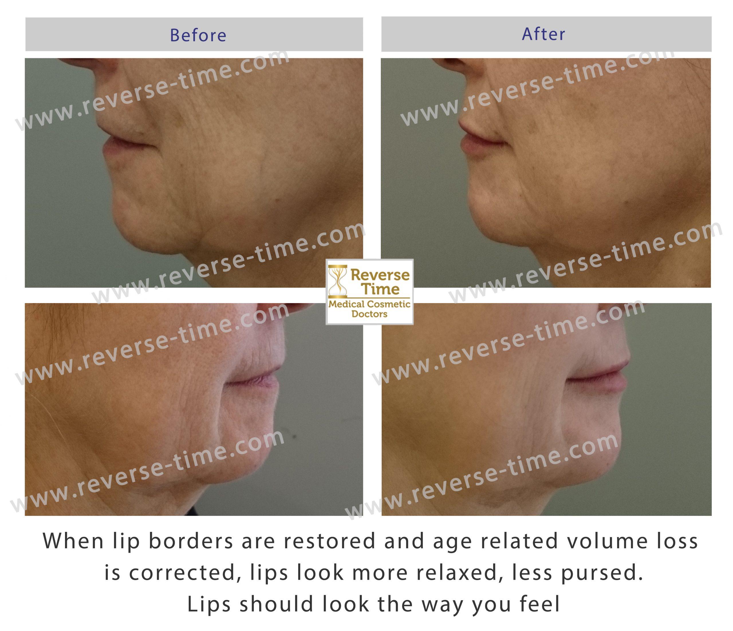 Natural restoration lips
