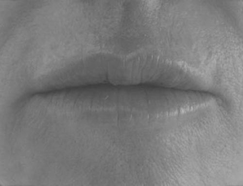 Natural Lip Restoration