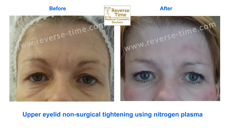 Non-surgical eyelid tightening
